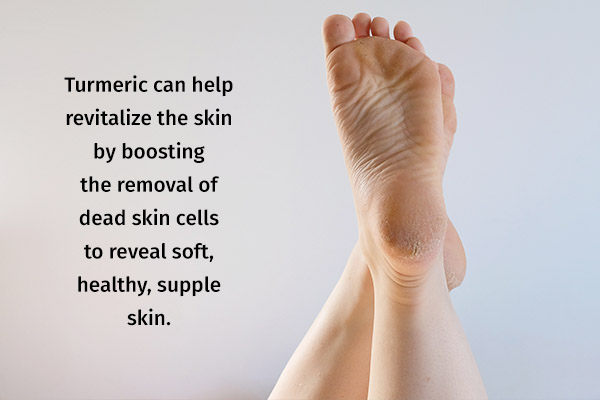 turmeric can help treat cracked heels and dry skin
