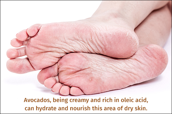 avocado can nourish dry skin and heal cracked heels