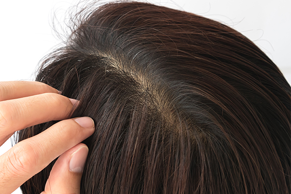 honey can help clean and prevent scalp buildup