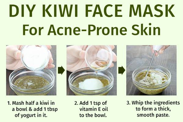 diy kiwi face mask for acne-prone skin