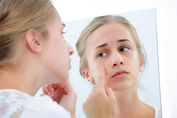 banana peels can help reduce skin blemishes