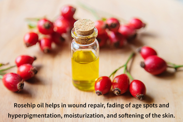 rosehip oil helps in fading of age spots and hyperpigmentation