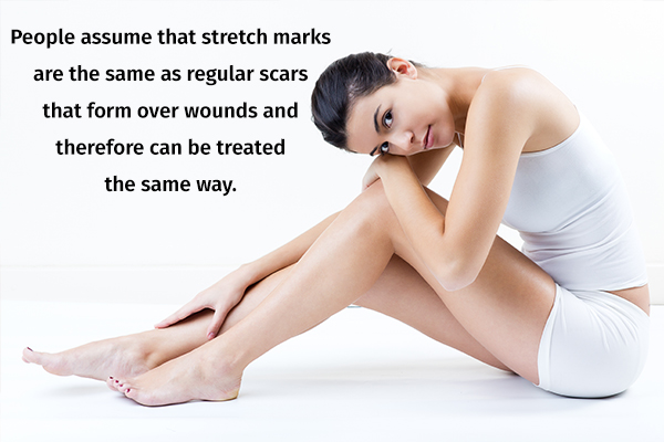 stretch marks can be eliminated completely