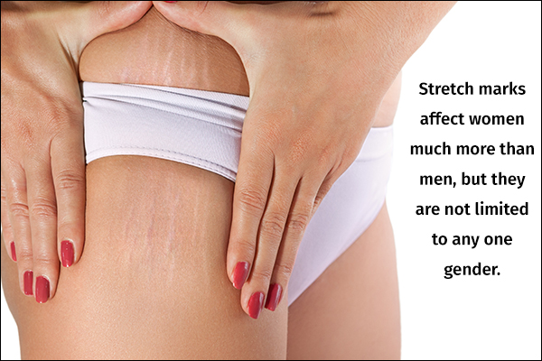 stretch marks are not limited to any one gender