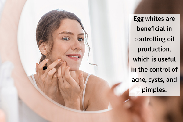 egg whites can help reduce acne and tone skin