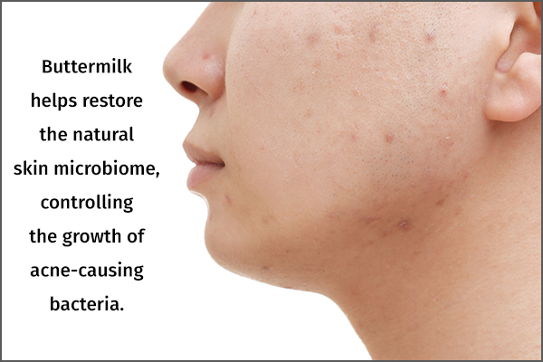 buttermilk can help control and manage pimples